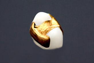 ゴールドインレー(白金加金)